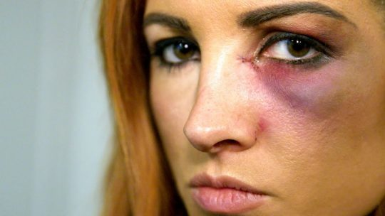 Video: Becky Lynch Learns She Can't Wrestle at Survivor Series