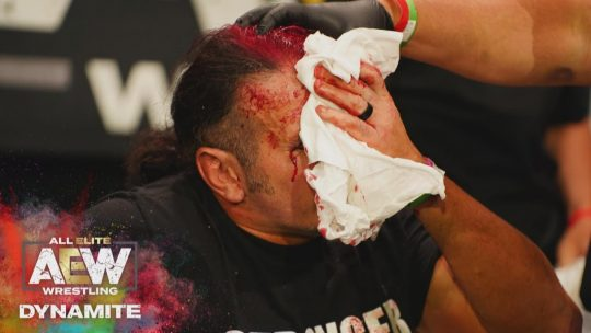 Matt Hardy Needed Stitches, Posts Photos of His Head After Being Busted Open